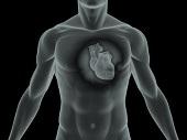 Miażdżyca serca - przyczyny i leczenie niedokrwienia serca