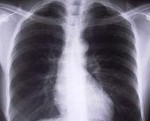 Przewlekłe zapalenie oskrzeli i jego objawy, przyczyny oraz leczenie