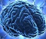 Czynniki wpływające na wystąpienie udaru mózgu