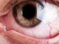 Jaskra - hipotezy przyczyn choroby