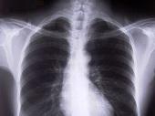 Leczenie i rehabilitacja przy obturacji płuc