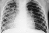 Ostre zapalenie oskrzeli - przyczyny, objawy i leczenie