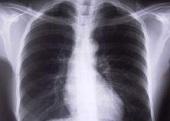 Przewlekłe zapalenie oskrzeli - objawy, przyczyny oraz leczenie