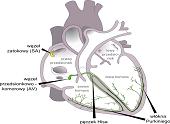 Arytmia serca - przyczyny i objawy oraz diagnoza