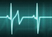 Choroba wieńcowa - objawy i profilaktyka