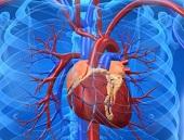 Miażdżyca najczęstszą przyczyną zawału serca