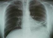Rodzaje i objawy zapalenia płuc